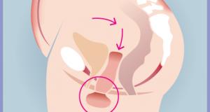 womb-prolapse-phase-2